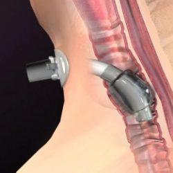 Animation of a Trachestomy Tube